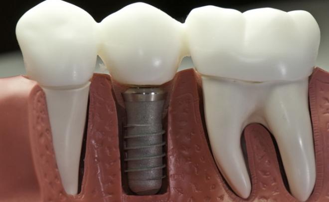 Che cosa è un impianto dentale